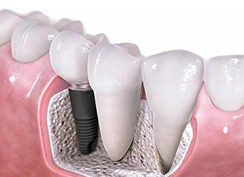 cut-away of dental implant in gum